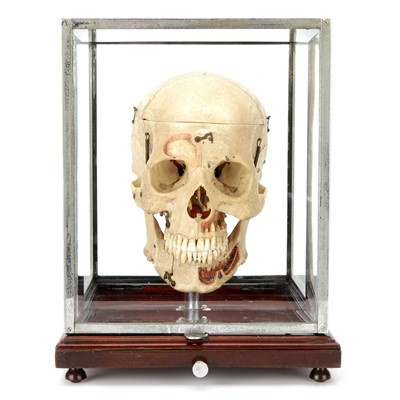 Lot 100-A Dissected Human Skull