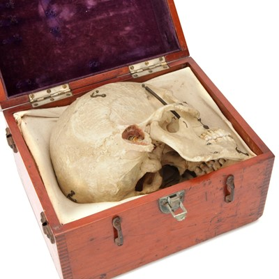 Lot 100 - A Dissected Human Skull